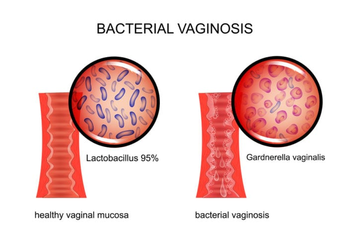 best probiotic for yeast infection - proviotics review - best proviotic for bv