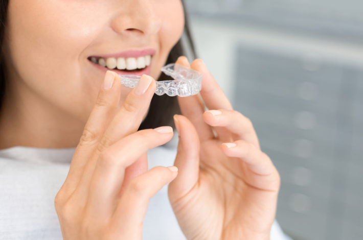 Candid aligner review - are candid the best teeth aligners