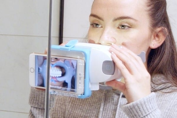 Candid aligner review - at home teeth aligners