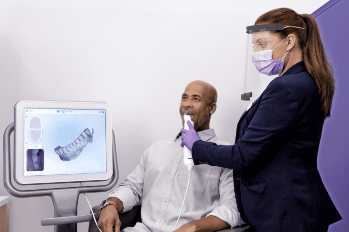 Smile Direct Club Nighttime Aligners